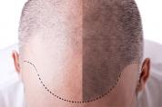 Gaziantep Saç Ekimi